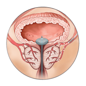 la technique d'embolisation de la prostate