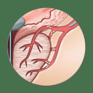 embolisation de l'artere prostatique