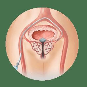 schema embolisation de prostate